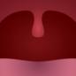 Voresphere